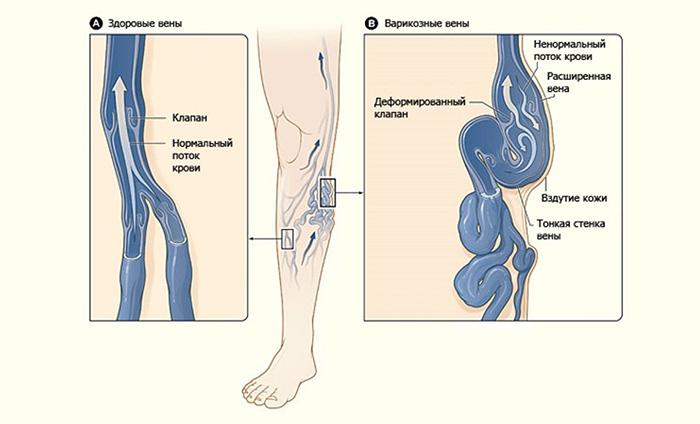 sibutramin-vizivaet-povrezhdenie-spermatozoidov